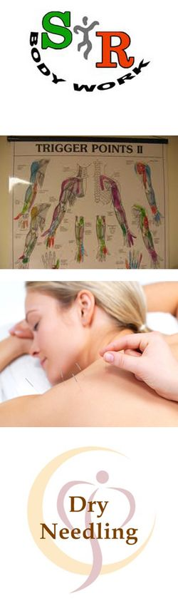 Trigger point - acupuncture