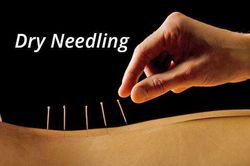Dry Needling for Musculoskeletal pain