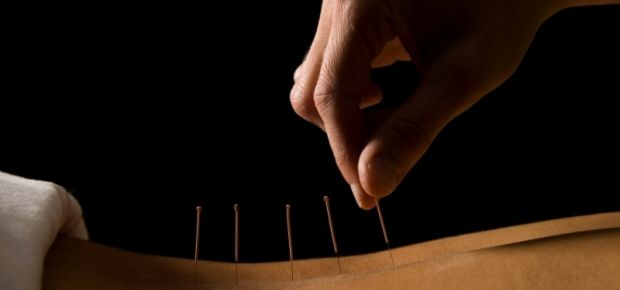 Acupuncture May Reduce Menopausal Hot Flushes